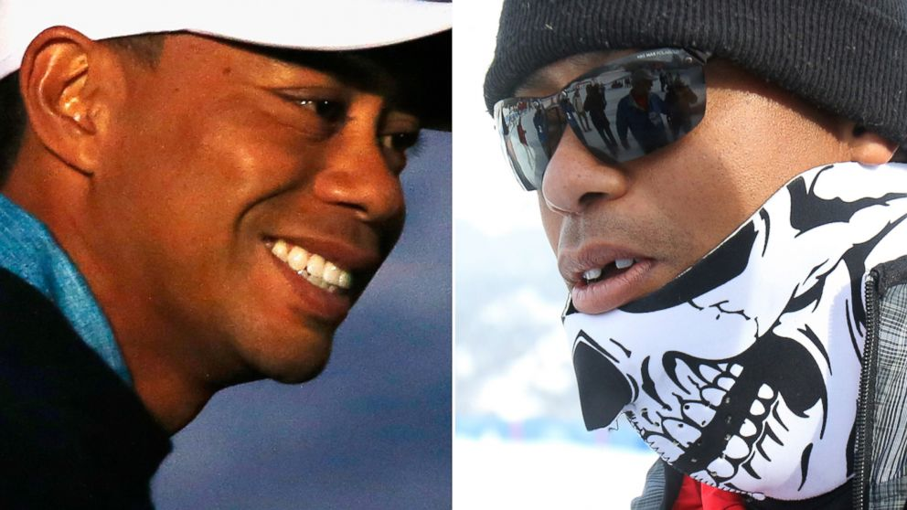 tiger woods u0026 39  missing tooth reappears