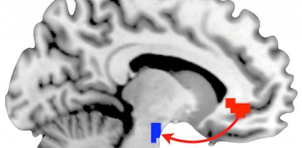 PHOTO: Brain Scan Personality Traits