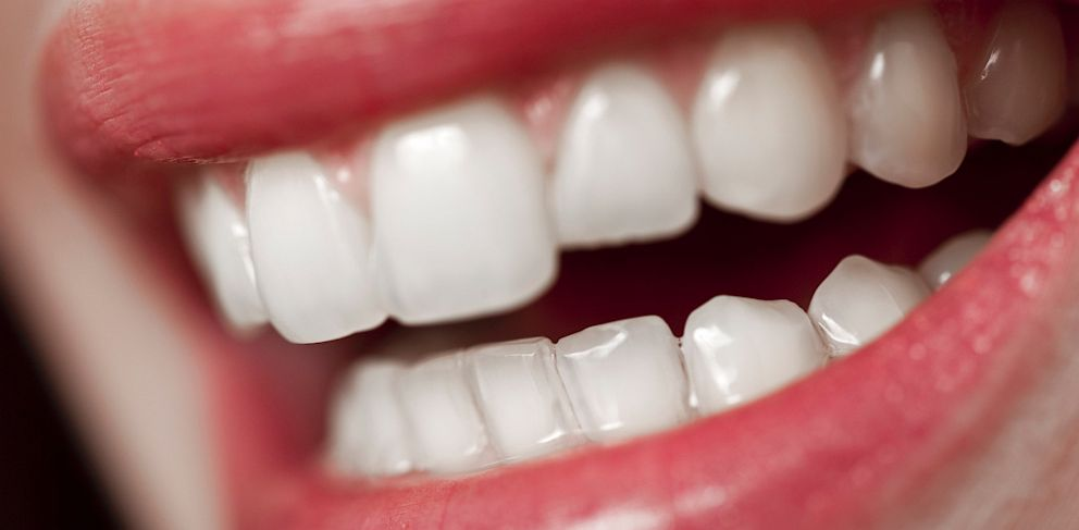 PHOTO: Duanqing Pei, a professor of stem cell biology at the research institute, took bladder epithelial cells found in urine and converted them into teeth. Pictured, adult human teeth.