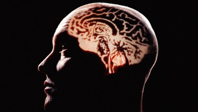 PHOTO: Human brain