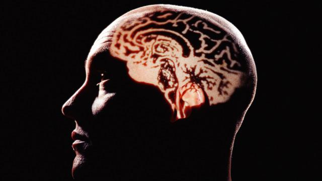 PHOTO: Human brain
