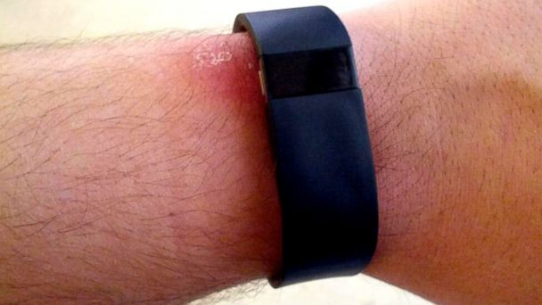 ht fitbit injury kb 140114 16x9 608 Fitbit Does More Than Track Fitness, It Also Leaves a Rash for Some