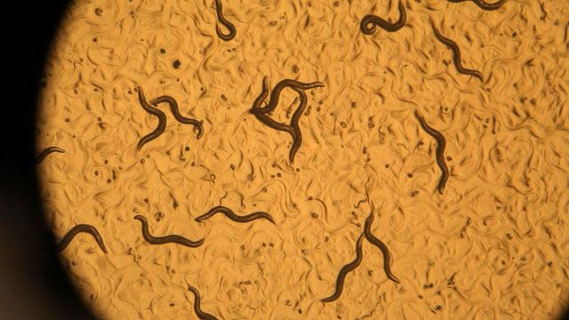 PHOTO: By studying the roundworm, Dr. Cynthia Kenyon and her team have pinpointed a combination of rare genes that seem to counter the effects of agi