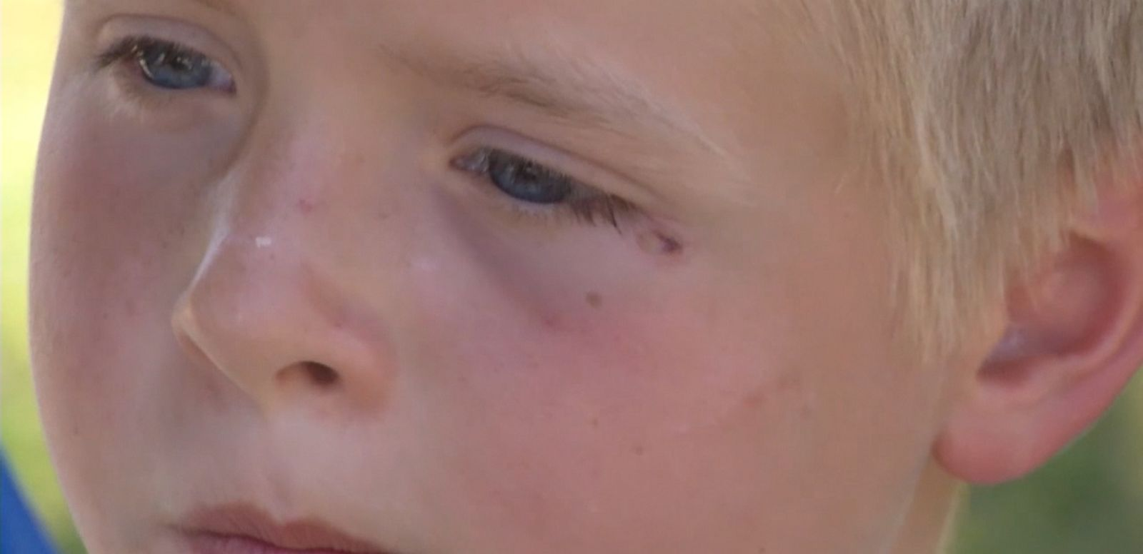 A 9-year-old Wisconsin boy reopened his lemonade stand after being shot in the face with a BB gun.