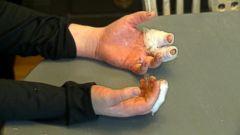 VIDEO: Girl badly burned playing with homemade slime