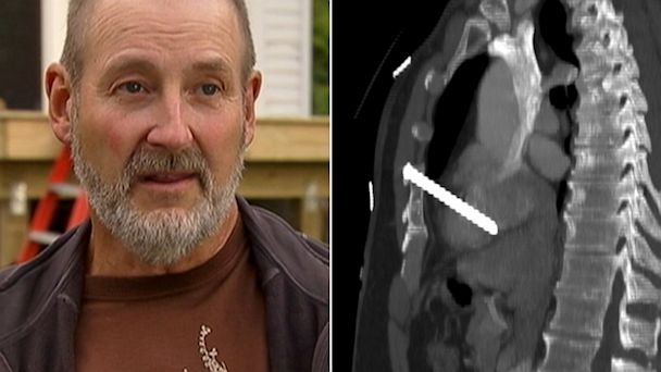 ABC HT eguene rakow jef 131003 16x9 608 Minnesota Carpenter Survives Nail Gun Shot to the Heart