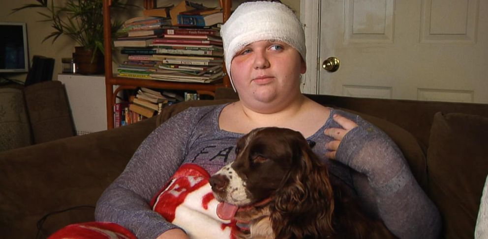 PHOTO:Leah Reeder, 15, is recovering following a bear attack near her home in Eastpoint, Fla