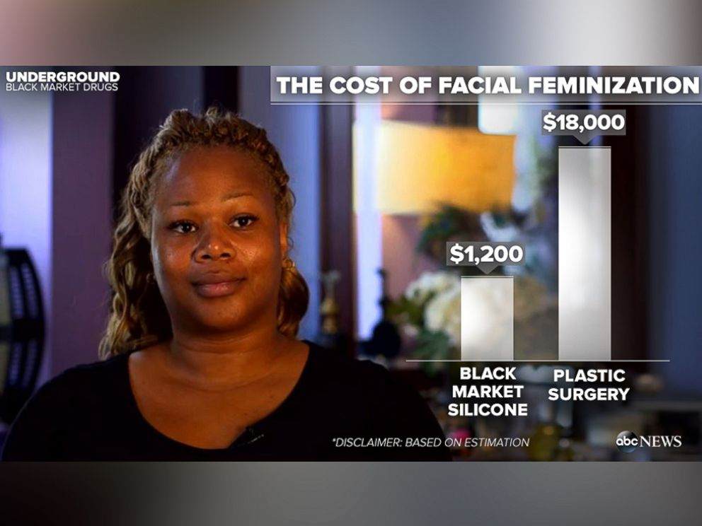 PHOTO: The cost of some black market drugs versus plastic surgery is seen here in this graphic.