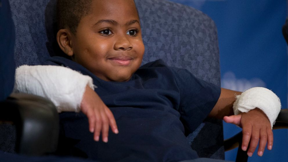 PHOTO: Double-hand transplant recipient eight-year-old Zion Harvey smiles during a news conference, July 28, 2015, at The Children?s Hospital of Philadelphia in Philadelphia.