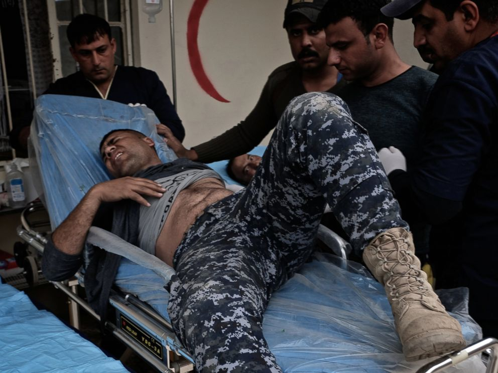 PHOTO: An police officer is badly wounded with burns from an ISIS suicide car bomb attack in the Mahallat al Jawsaq neighborhood of Mosul, Iraq on March 1, 2017.