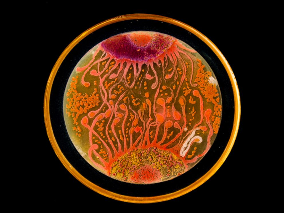 PHOTO: Cell to Cell by microbiologists Mehmet Berkmen and Maria Penil from Massachusetts won the Peoples Choice award in the American Society of Microbiologys 2015 Agar Art Contest.