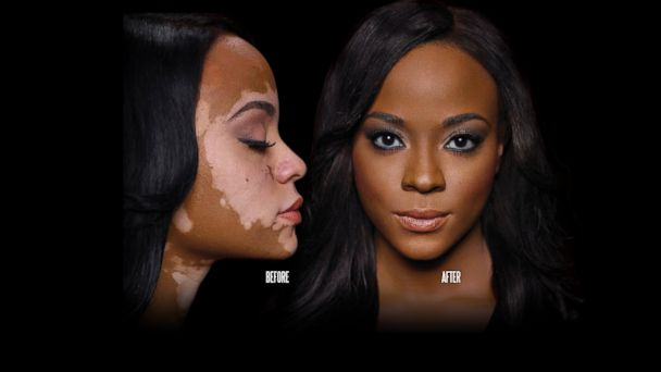 PHOTO: Makeup helps cover up this womans vitiligo.