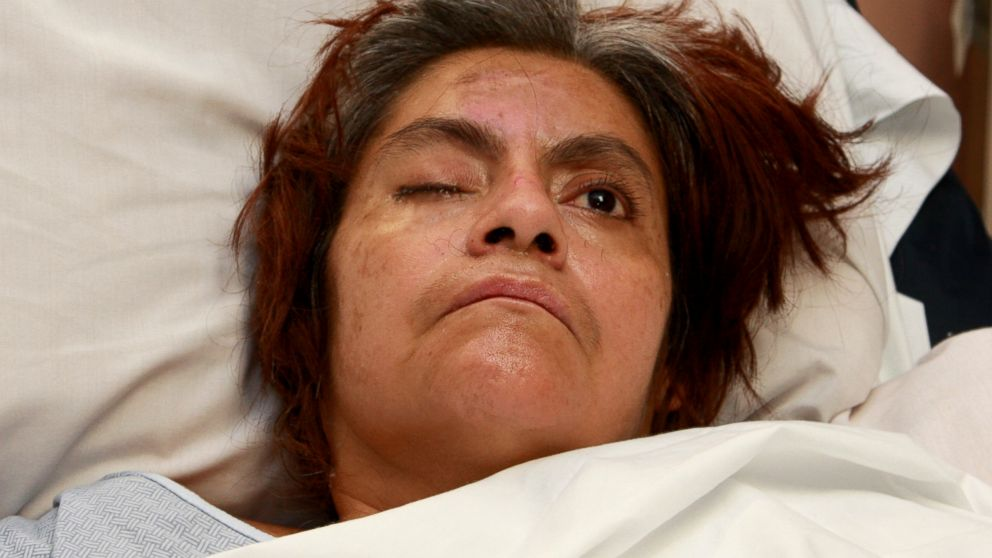 PHOTO: Santa Ana, Calif., police are appealing to the public to help identify a mystery woman who was injured in an Oct. 15, 2013 traffic collision.