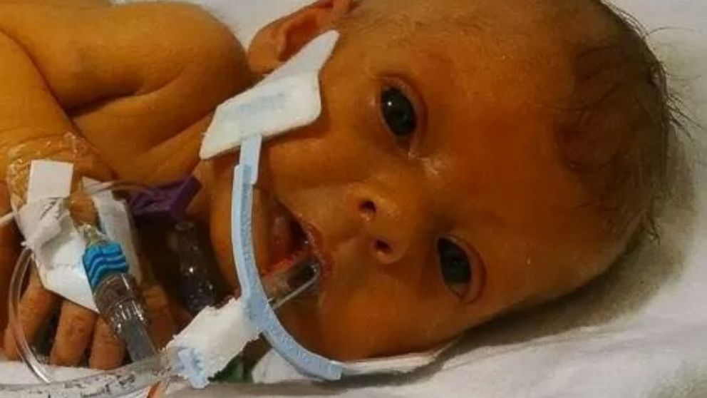 PHOTO: Nathan Steffel reached out to Reddit for help removing the tubes from a photo of his daughter.