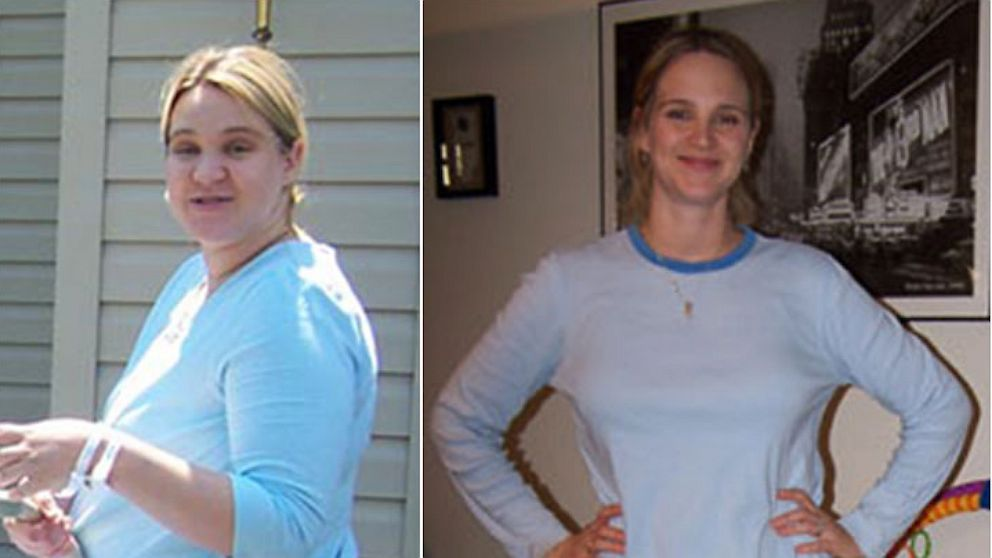 PHOTO: Roni Noone claims a diet company used her weight loss photos without her consent to promote a weight loss product.