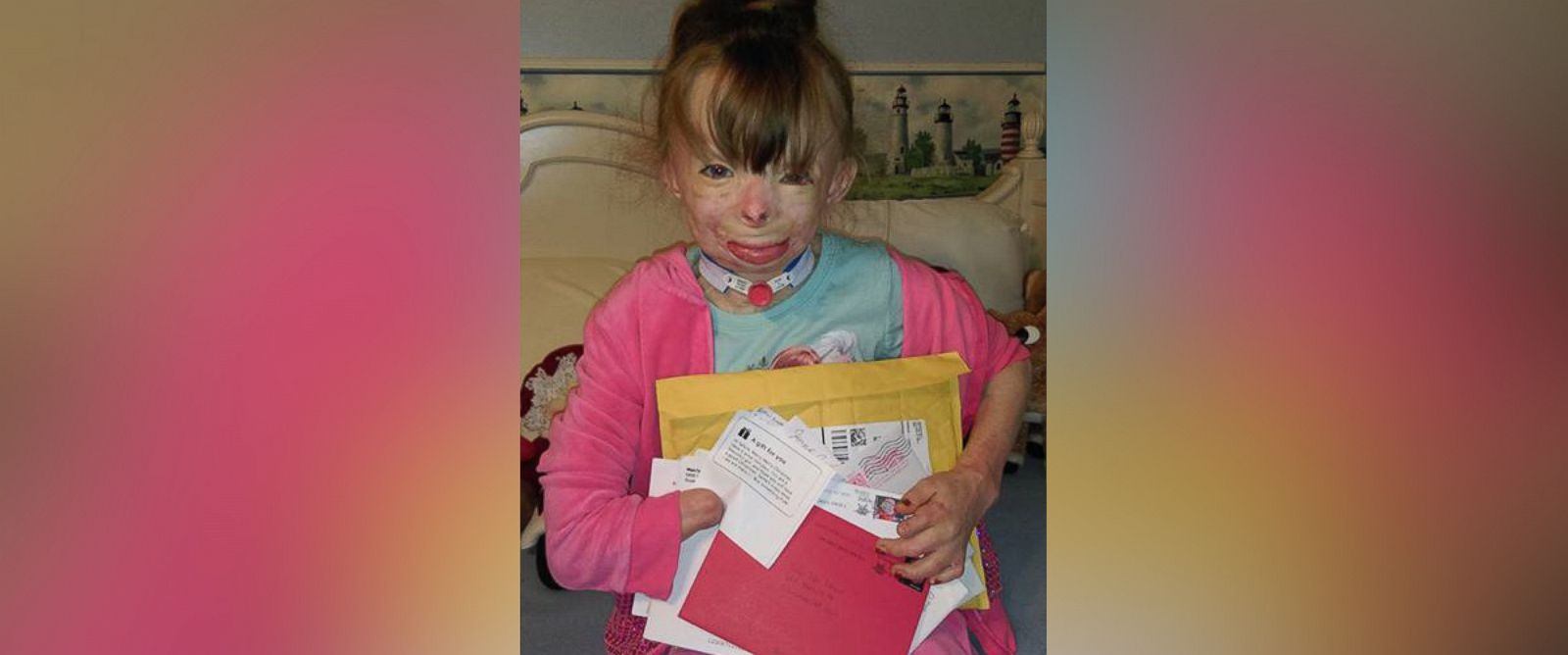 PHOTO: Safyre, 8, told her aunt the only thing she wanted for Christmas was cards from all over the world. An arson fire killed her father and three siblings in 2013 and burned 75 percent of her body.