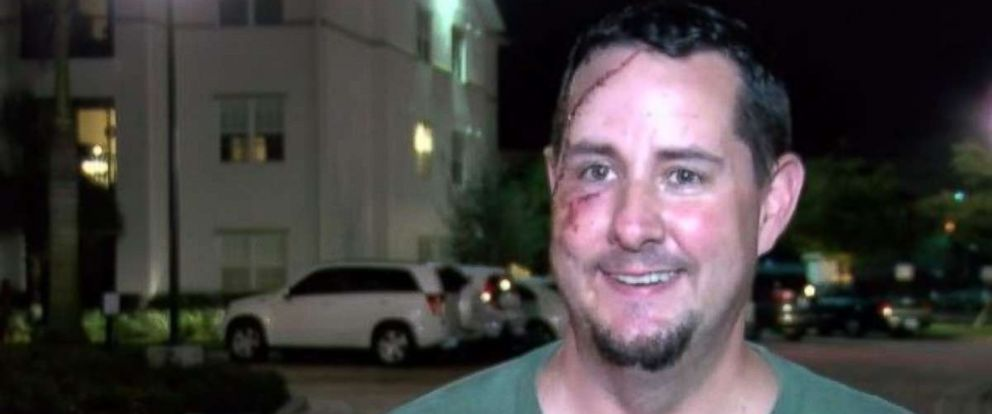 Andy Meunier has an ugly souvenir on his face after tangling with a bear outside his home in Naples, Florida.