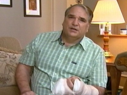 VIDEO: Bill Jordan tore skin and ligaments in his finger during the mall robbery.