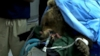 VIDEO: A Syrian grizzly bear was treated for broken legs by Colorado State University Veterinary Teaching School.
