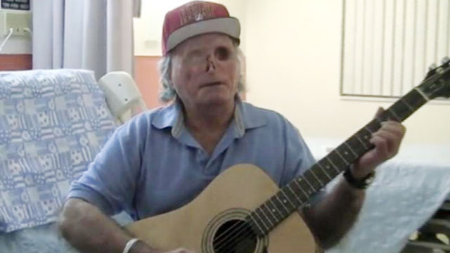 PHOTO: Face-chewing victim Ronald Poppo, who was attacked May, 2012 in Miami, released a video thanking the