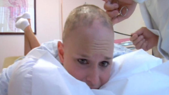 PHOTO: Georgia Van Cuylenburg underwent painful treatments in attempt to regrow her hair.