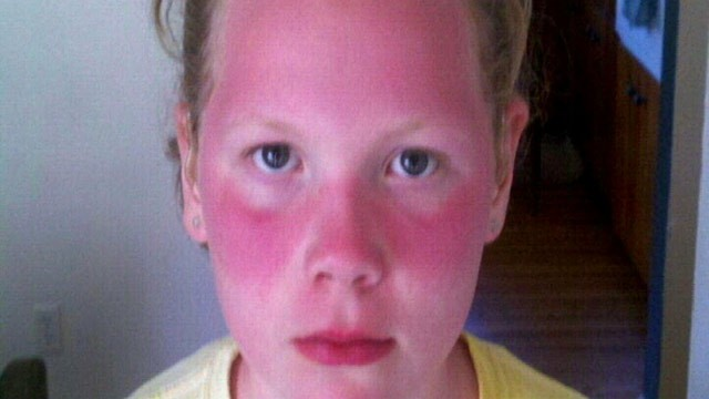 PHOTO: Severely sunburned at school, Violet and Zoe Michener came home from field day so burned that their mother rushed them to the hospital.