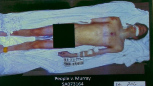 PHOTO:&nbsp;A photo of Michael Jackson post mortem is shown, after being presented as evidence during the Conrad Murray trial, Oct. 11, 2011.
