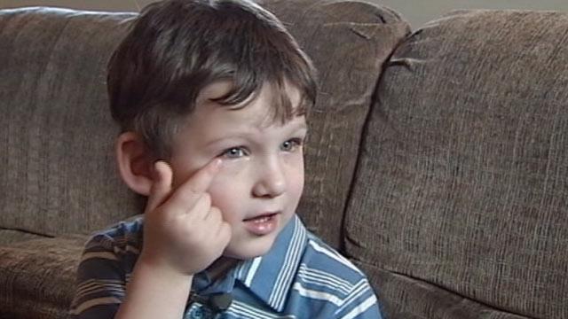 PHOTO:Four-year-old Jesse Matlock underwent surgery