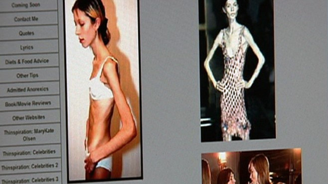 Pro-Anorexia Sites' Deadly Messages