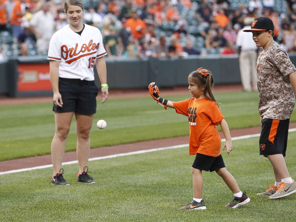 PHOTO: Hailey Dawson, a 7-year-old from Nevada, has thrown the first pitch with her 3-D printed hand for two major league baseball teams and hopes to reach her goal of 28 more.