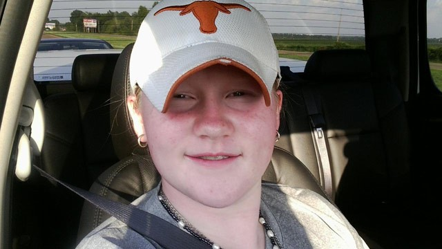 PHOTO: Elizabeth Robinson, 13, appears in this photo provided by her family.