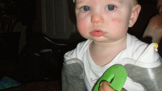PHOTO: Nine-month-old Jameson Davis, seen in this undated handout photo, is a bilateral amputee and at seven-months-old became the youngest to be fitted with bilateral passive prosthesis through Advanced Arm Dynamics Prosthetic.