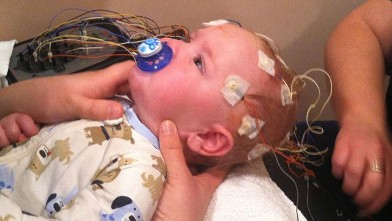 PHOTO: Nine month old month old Casen Buswell, has a genetic condition that hardens his blood vessels, skin and muscle.