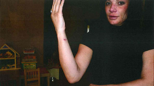 PHOTO: Dina Shacknais injuries after she said Jonah Shacknais German shepherd attacked her during a domestic dispute.