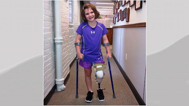 ht jane richard 2 mi 130815 16x9 608 Boston Marathon Bombing Victim Jane Richard Incredible Source of Inspiration to Family