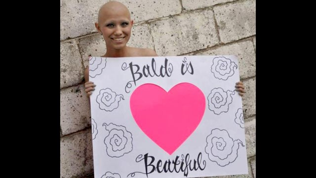 PHOTO: Katelyn Norman, 14, of LaFollette, Tenn., is dying from Osteosarcoma, an aggressive bone cancer, but is trying to accomplish the items on her bucket list.