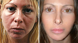 PHOTO Laura Pillarella underwent 15 plastic surgeries. Now, she says she regrets having them done.