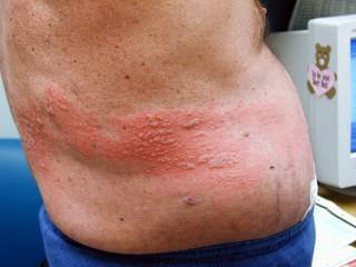 Herpes outbreak 16 weeks pregnant 800m