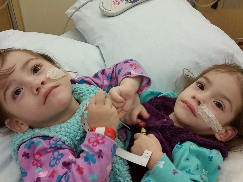 Formerly conjoined twins Eva and Erika Sandoval are seen here before their separation surgery.