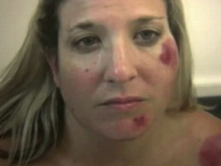 Watch: Woman Allegedly Slammed to Ground by LAPD Officers