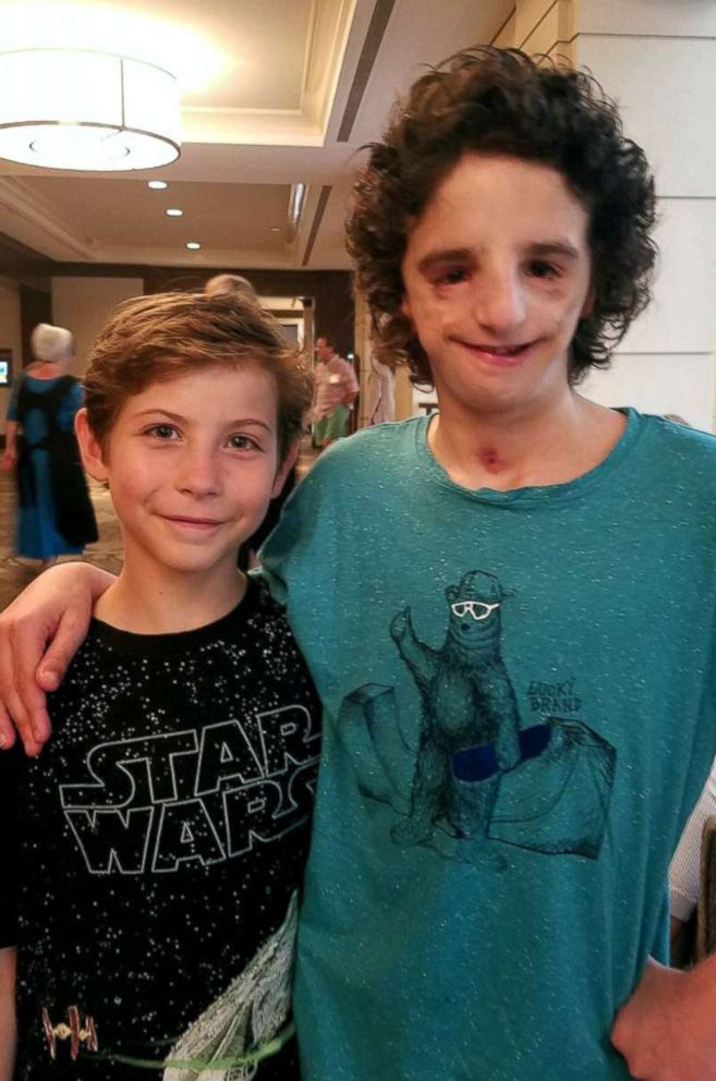 PHOTO: Nathaniel Newman is pictured with actor Jacob Tremblay, who portrays a kid born with Treacher Collins syndrome in the film, Wonder.