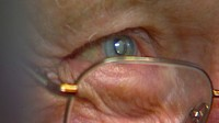 Bionic Sight: FDA OKs Telescope Eye Implant