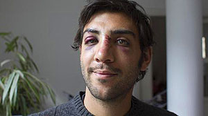 PHOTO: Sherief Gaberf shows his injuries after being struck in the face by pro-Mubarak forces in Cairos Tahrir Square.