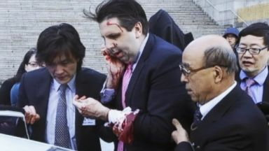 VIDEO: WN 03/04/15: US Ambassador Mark Lippert Attacked in Seoul