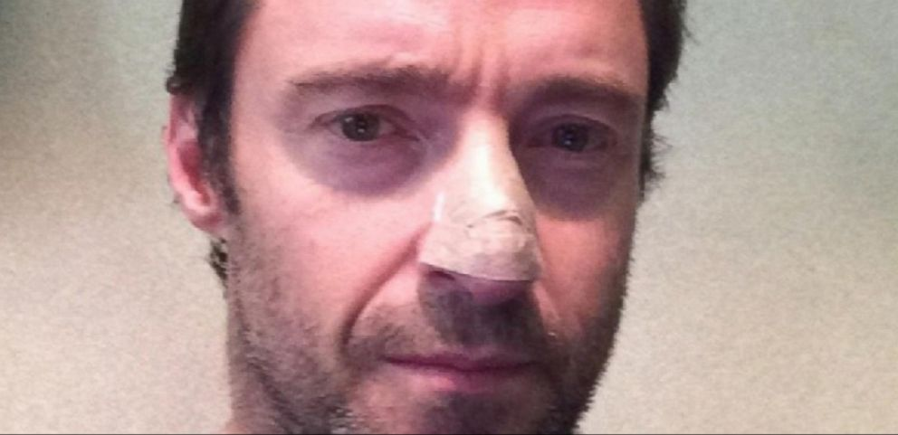 VIDEO: Hugh Jackman on His Battle With Skin Cancer, Education Plan for Kids