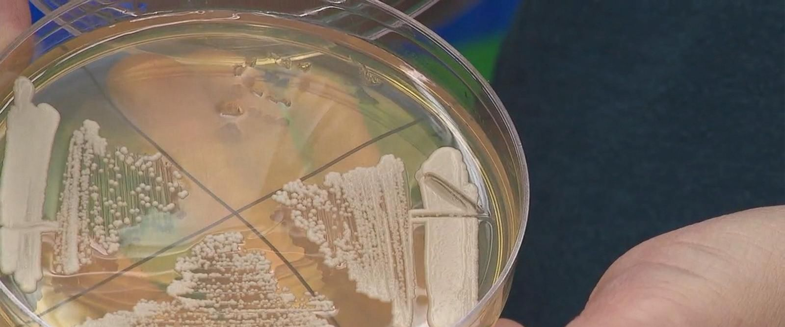 VIDEO: New deadly superbug threat in the US