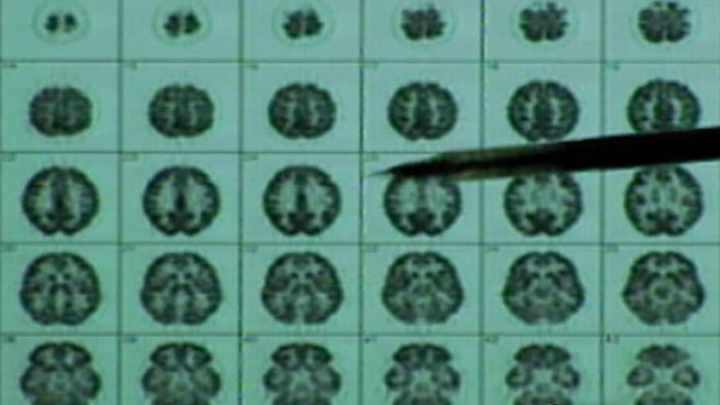 research papers on alzheimers Free alzheimers disease papers, essays, and research papers.