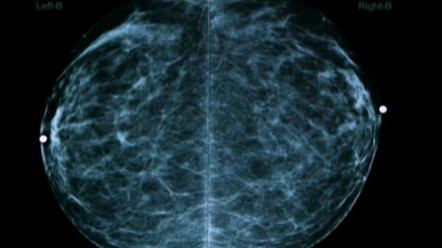 VIDEO: New research suggests a large number of women who die from breast cancer have never had a mammogram.