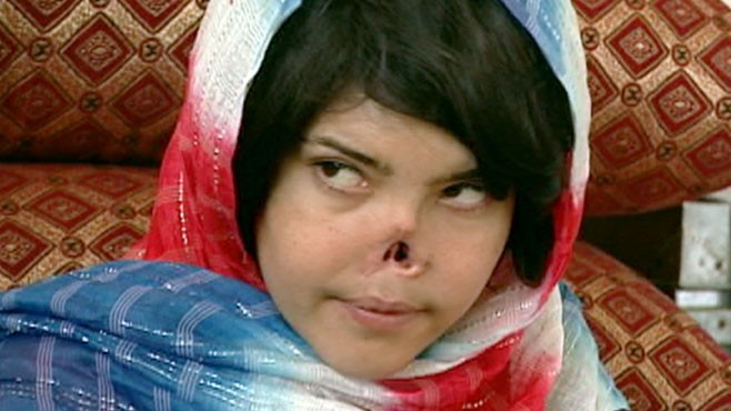 VIDEO: Justice for Disfigured Afghan Woman 'Bibi' Aisha