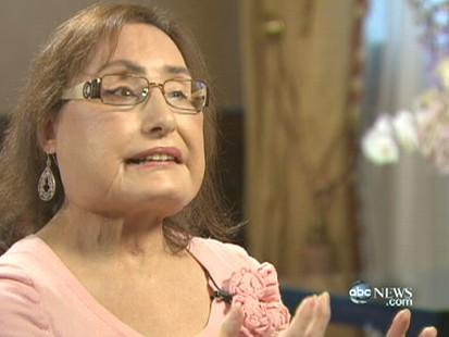 VIDEO: Connie Culp talks to Diane Sawyer about her recovery a year after her surgery.